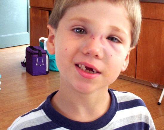 перелом носа у мальчика