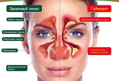 Острый катаральный полисинусит