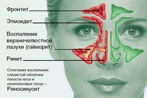 этмоидит у женщины