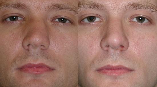 фото мужчины с искривлением носовой перегородки