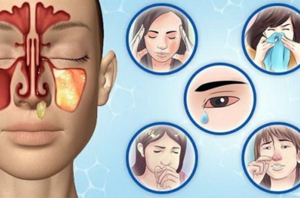 симптомы катарального риносинусита