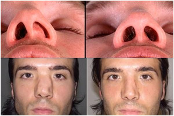 лазерная хирургия носа до и после