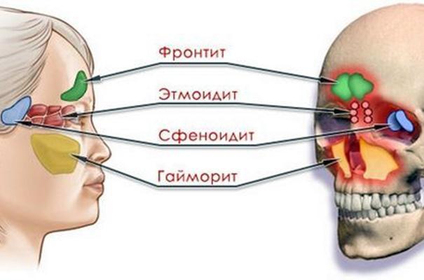 схема синуситов