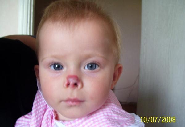 гемангиома носа у ребенка