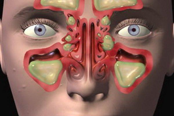 схема катарального гайморита