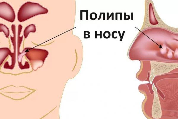 схема полипы в носу