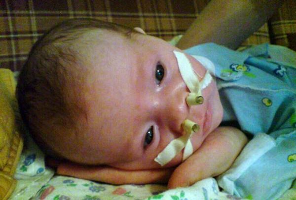 ребенок с диагнозом Атрезия хоан