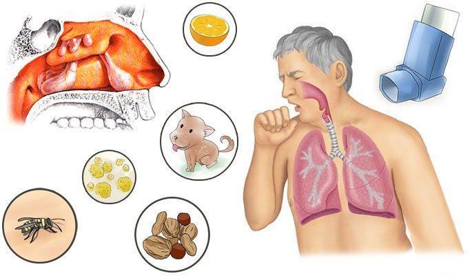 симптомы аллергический синусит