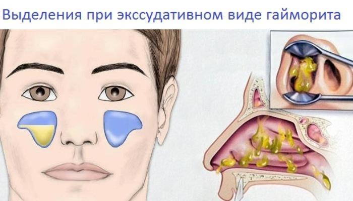 выделения при экссудативном гайморите