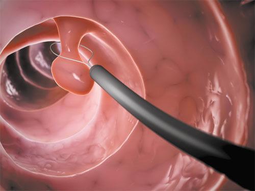 операция Полипэктомия