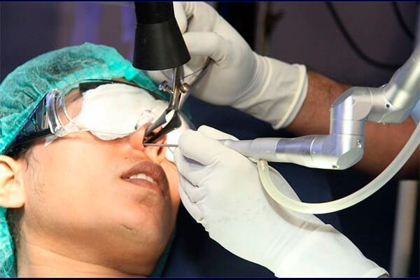 операция по удалению кисты в носовой пазухе