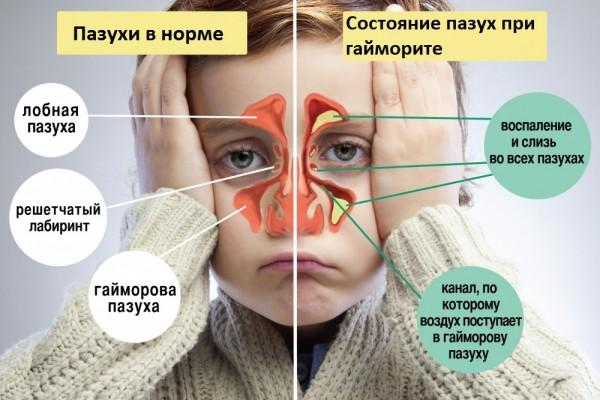 симптомы гайморита у ребенка