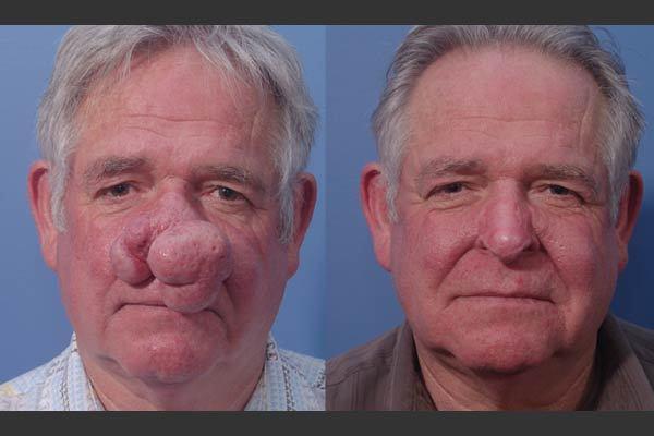до и после лечения Ринофимы носа