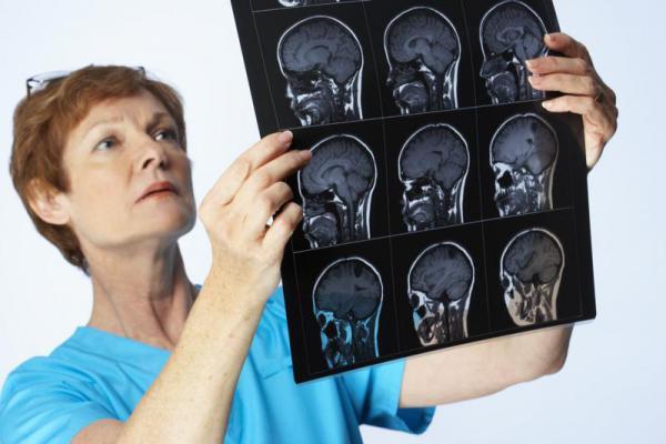 врач со снимками мозга