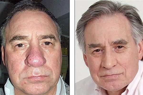 мужчина с ринофимой носа