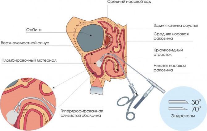 схема опухоли в носу