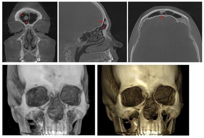 остеома лобной пазухи на снимках