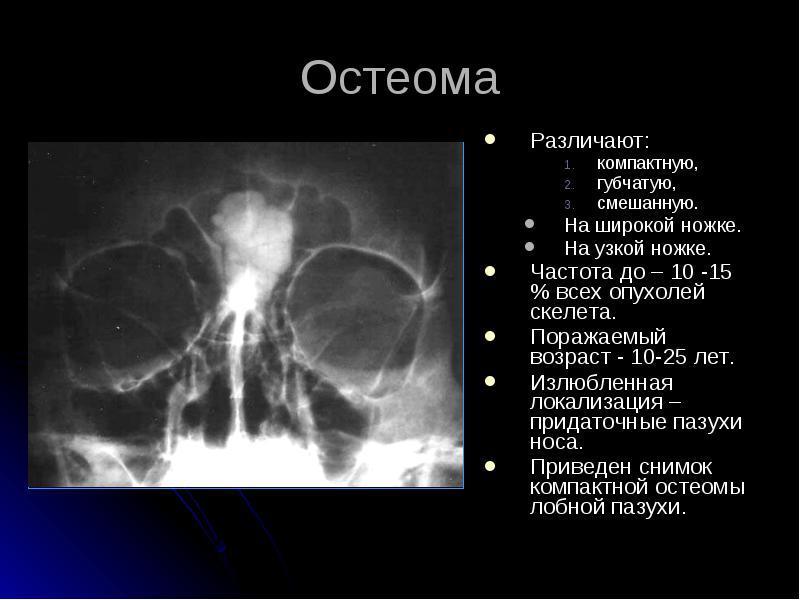 факты о остеоме