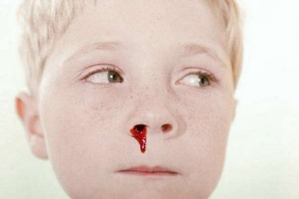 кровотечение у ребенка из носа