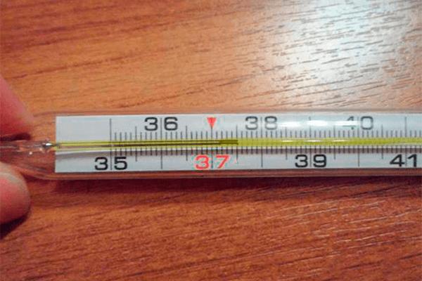 температура 37,5