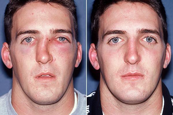 до и после искривления носовой перегородки