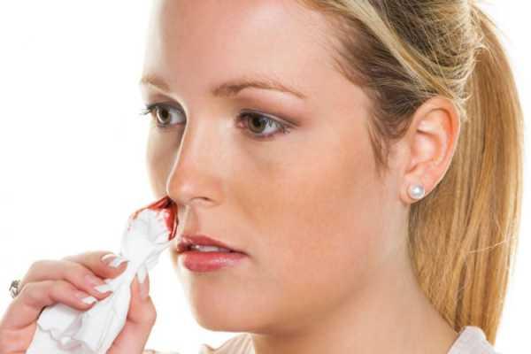 кровотечение из носа у девушки