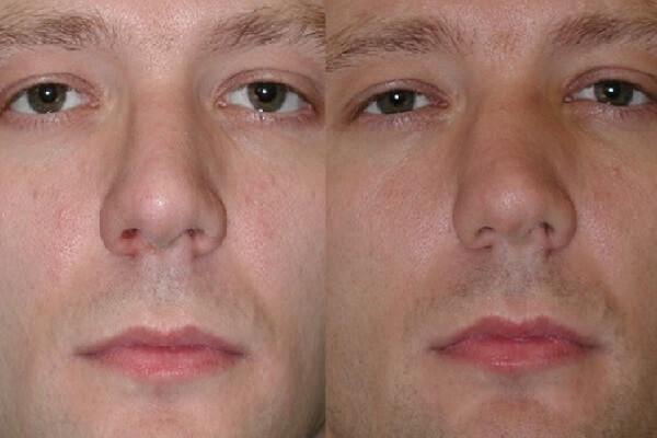 мужчина с искривлением носовой перегородки