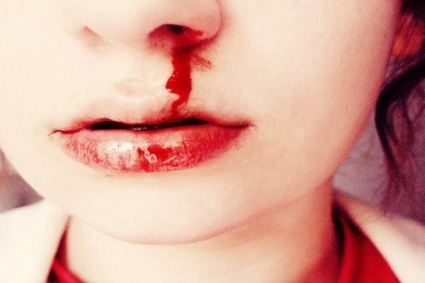 кровь над губой