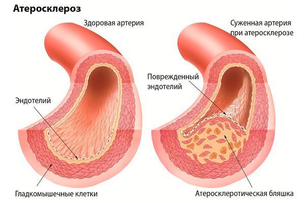 схема атеросклероза