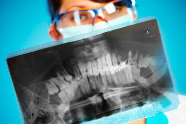 рентген ротовой полости