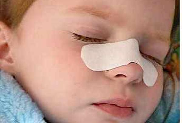 пластырь от насморка на носу у ребенка