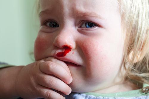 Кровотечение из носа у маленькой девочки