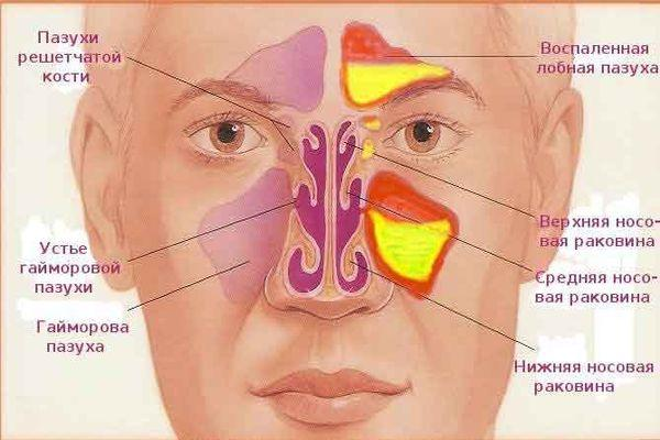 схема носа