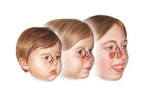 Лекарство от синусита и гайморита