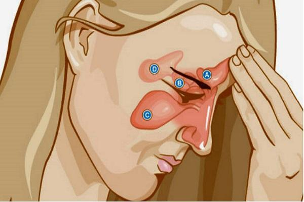 схема катарального фронтита