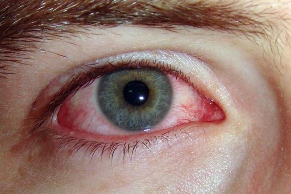 глаз при конъюнктивите