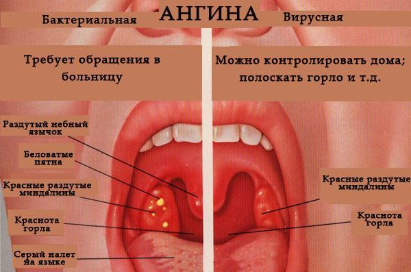 разновидности ангины