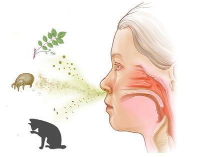 схема аллергического ринита