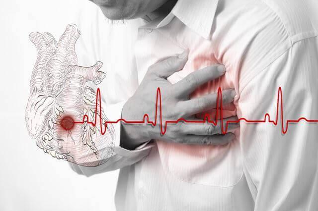 изображение инфаркта миокарда