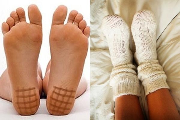 йодовая сетка на ногах