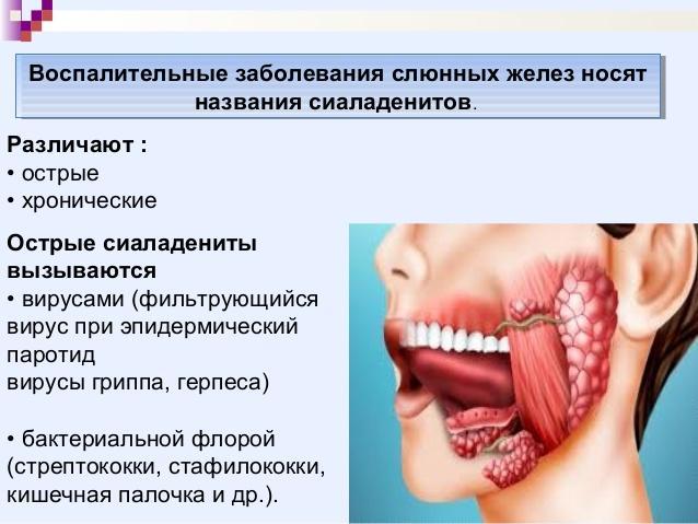 болезнь сиаладенитов