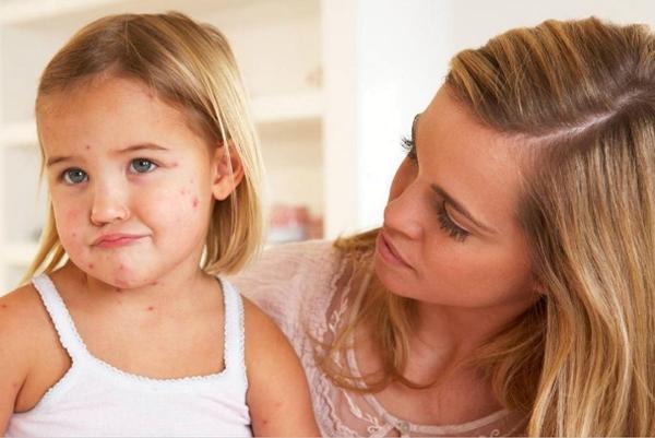 мама смотрит на ребенка с ветрянкой