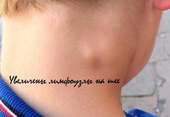 внешний вид увеличенных лимфоузлов на шее