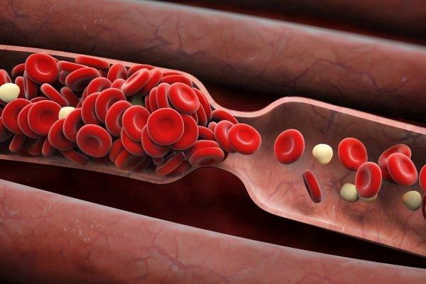 внешний вид крови