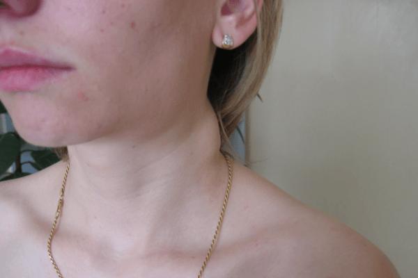 увеличен лимфоузел на шее