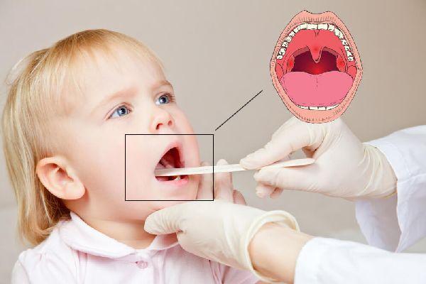 врач осматривает рот ребенка