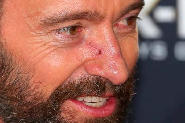 у мужчины рак носа
