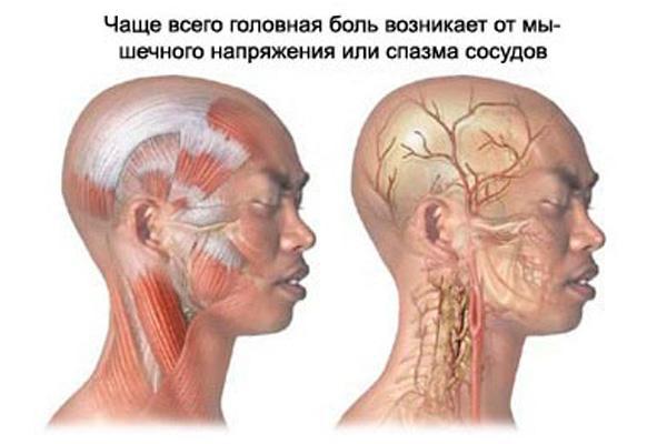 причины боли в шеи