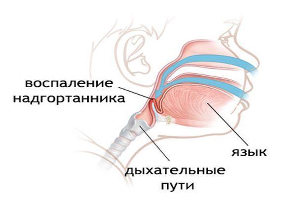 воспаление надгортанника