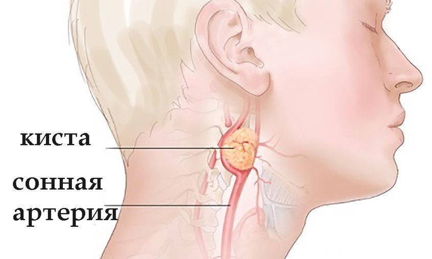 Боковой свищ шеи - причины, симптомы, диагностика и лечение